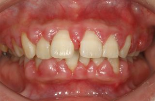 歯周病治療 術前