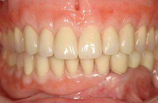 入れ歯の症例 術後