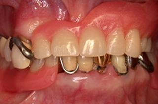 入れ歯の症例 術前