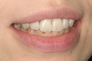 審美修復の症例2 術後の笑顔