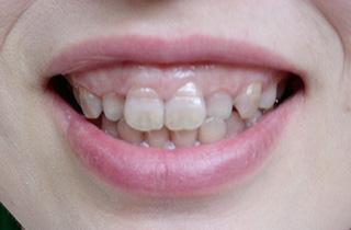 審美修復の症例2 術前の笑顔