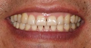 ホワイトニング 症例2 術前