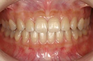 予防歯科 症例1